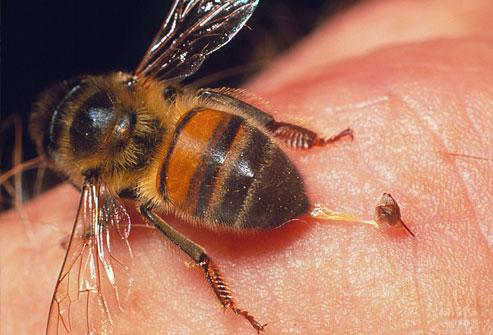Saniranje uboda pčela i stršljenova